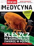 Focus Medycyna - 2016-06-04